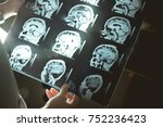 brain scan for dementia  | Shutterstock . vector #752236423