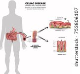 celiac disease affected small... | Shutterstock .eps vector #753806107