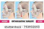 orthognathic surgery vector... | Shutterstock .eps vector #753932053