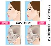 jaw surgery vector illustration  | Shutterstock .eps vector #753984673