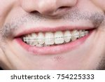 macro shot of white teeth with... | Shutterstock . vector #754225333