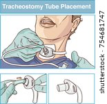 tracheostomy tube placement... | Shutterstock .eps vector #754681747