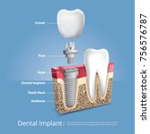 human teeth and dental implant... | Shutterstock .eps vector #756576787