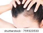 woman serious hair loss problem ... | Shutterstock . vector #759323533