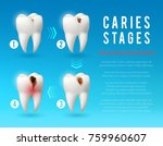 tooth decay 3d vector poster.... | Shutterstock .eps vector #759960607