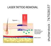 laser tattoo removal. dark ink...   Shutterstock .eps vector #767028157