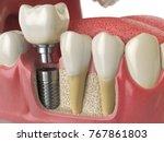 Anatomy Of Healthy Teeth And...