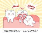 cute cartoon wisdom teeth with...   Shutterstock .eps vector #767969587