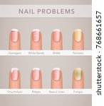 nail problems and illness ... | Shutterstock .eps vector #768661657