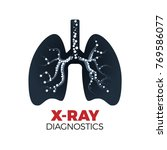 lungs x ray diagnostics vector...   Shutterstock .eps vector #769586077