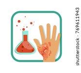 chemical burn of third degree.... | Shutterstock .eps vector #769611943