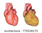 healthy and obese heart with... | Shutterstock . vector #770528173