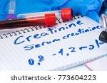 creatinine or serum creatinine... | Shutterstock . vector #773604223
