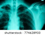 film chest x ray  show normal...   Shutterstock . vector #774628933