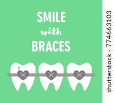 smile with braces on teeth... | Shutterstock .eps vector #774663103