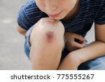 closeup of injured young kid's... | Shutterstock . vector #775555267