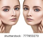 female nose before and after... | Shutterstock . vector #777853273