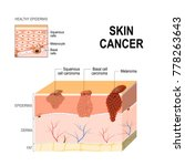 skin cancer  squamous cell... | Shutterstock . vector #778263643