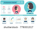 female hair loss fue medical... | Shutterstock .eps vector #778331317