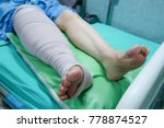 leg with bandage after surgical ... | Shutterstock . vector #778874527