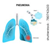 pneumonia. normal and... | Shutterstock .eps vector #780742633