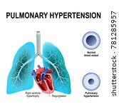 pulmonary hypertension is an... | Shutterstock .eps vector #781285957