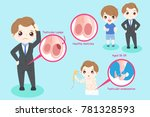 man with testicular lumps... | Shutterstock .eps vector #781328593