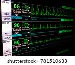 Stock photo vital sign ekg monitor 781510633