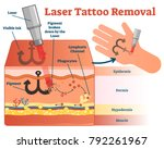 laser tattoo removal vector... | Shutterstock .eps vector #792261967