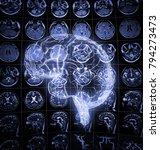 luminous drawing of human brain ... | Shutterstock . vector #794273473