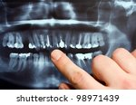 Panoramic dental X-Ray with hands point - stock photo