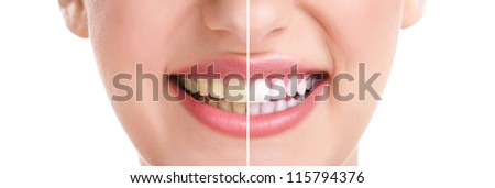 woman teeth and smile  close up