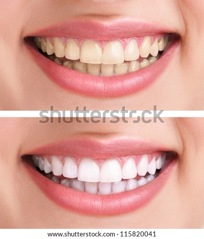 whitening   bleaching treatment