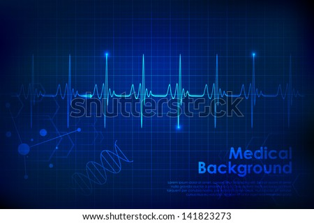 illustration of heart beats on