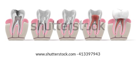 3d renderings of endodontics - root canal procedure