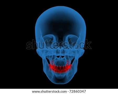 3d X-ray Photo illustration of a skull and teeth in red