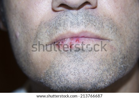 A man infected with oral herpes