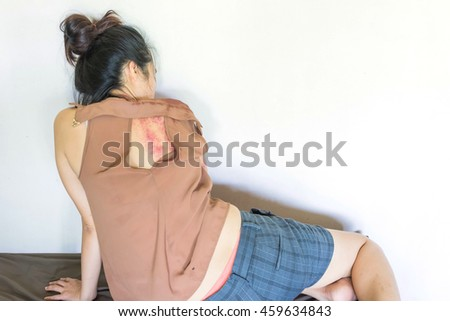 a woman sitting on ground with bruises on body, Sexual violence , sexual abuse,human trafficking