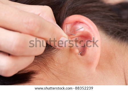 Acupuncture therapist placing needle in ear of patient