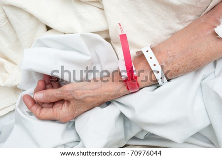 An elderly woman wearing medical arm bands for identification purposes.