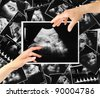 baby on an ultrasound image - stock photo