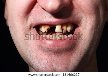 Dating a girl with a bad smile