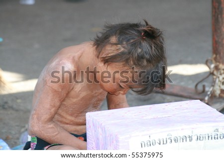 BANGKOK, THAILAND - NOVEMBER 29: Disabled boy sits and begs for money in Chatuchak market on November 29, 2008 in Bangkok.