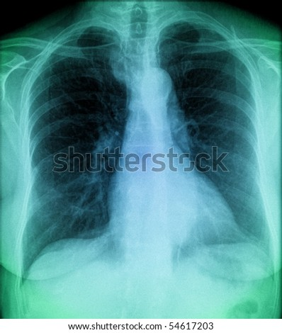 blue chest, x-ray of human thorax in colour