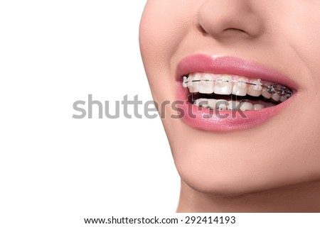 how to keep teeth white with braces
