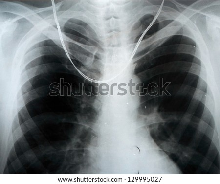 chain on chest, X-ray