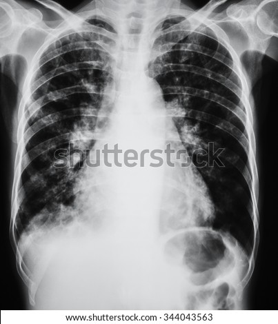 Chest X-ray image showing infection of lungs