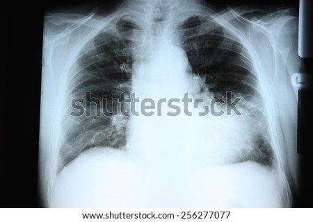 Chest X-ray showing a large infiltrate in the lingular segment of the left lung. Pneumonia.