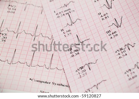 heart and stress results The best tests help diagnose heart disease and prevent heart attacks  dr  agatston: a stress test is only good at identifying those individuals  rather, it  results from the outdated approach that still defines the standard of.