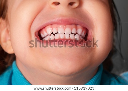 Closeup of kid mouth
